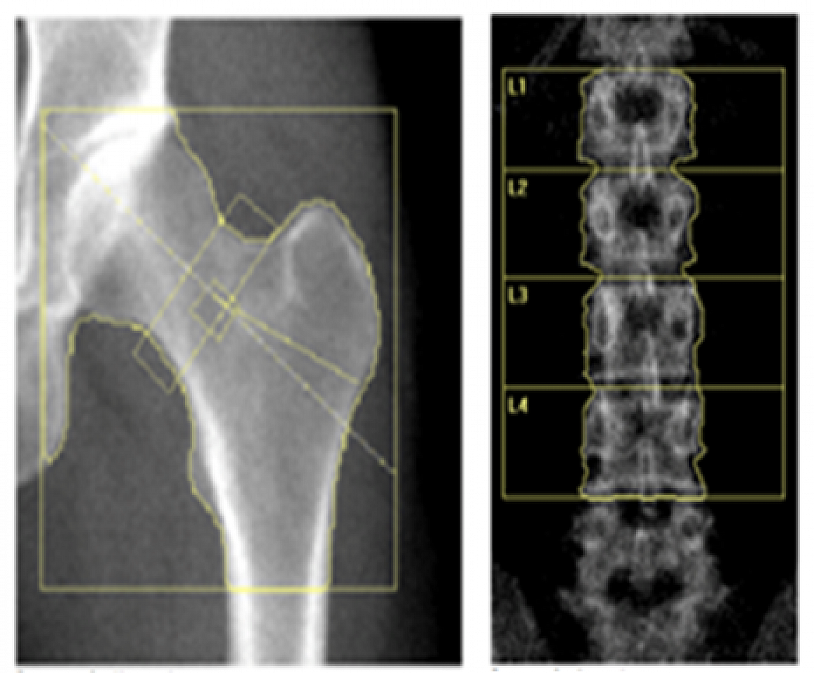 Researchers at the NIH examined scans of the hip and lower spine to determine the effects of hormone treatment on bone mineral density of women with primary ovarian insufficiency.