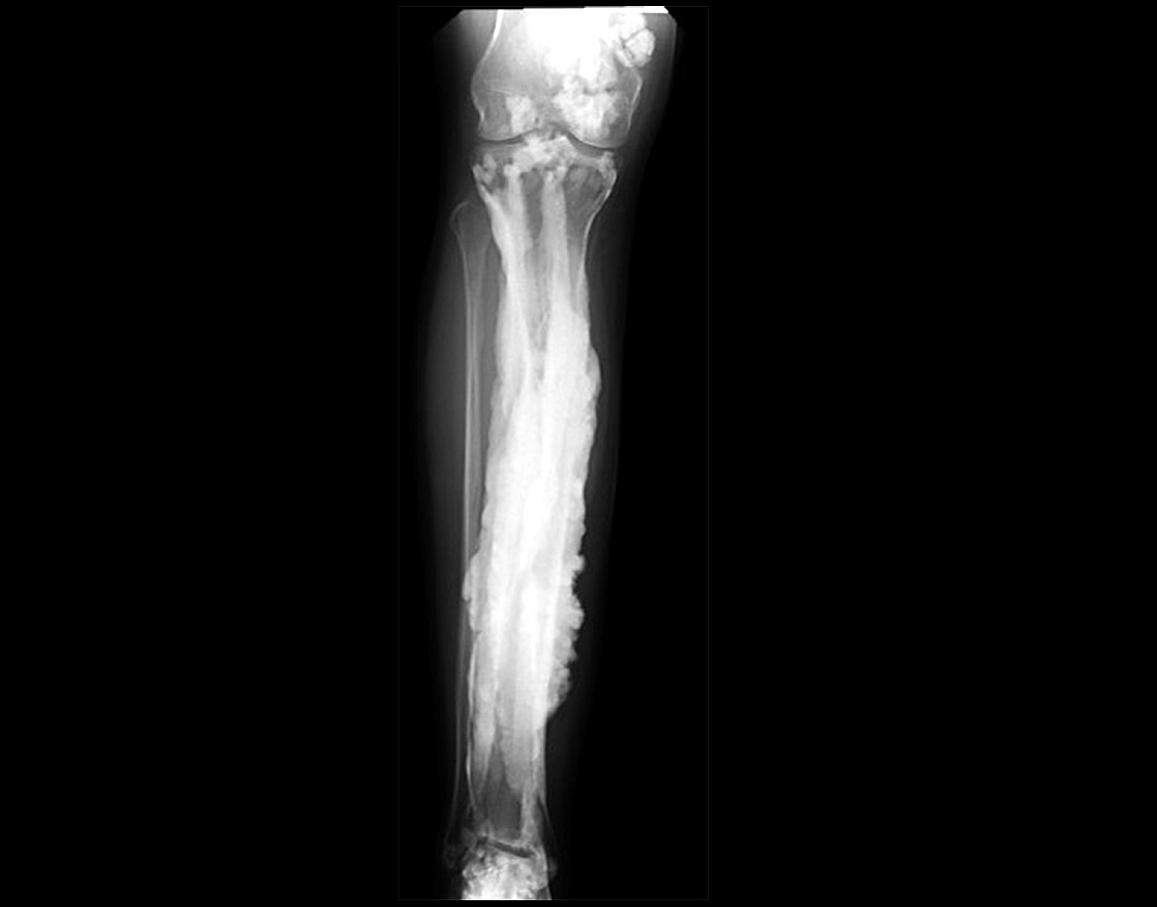 An x-ray image showing excess bone formation.