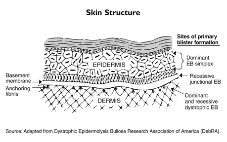 Epidermolysis bullosa occurs when genetic defects result in the skin's two main layers not adhering properly at the dermal-epidermal junction.