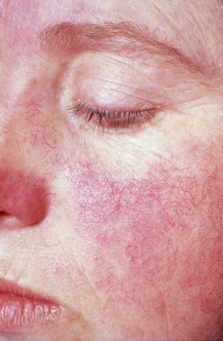 Photo of butterfly rash on the face.