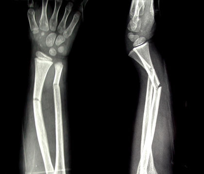 Childhood Forearm Breaks Resulting From Mild Trauma May Indicate