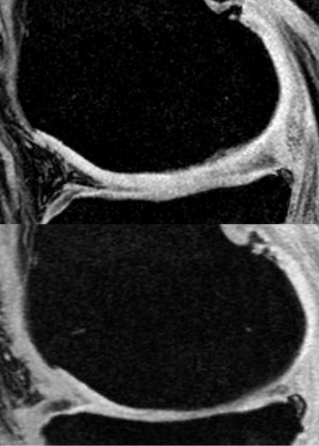 The knee cartilage of a patient with OA thins over time (upper panel: prior to treatment; lower panel: 2 years later, with corticosteroid injections to the knee every 3 months). Repeated corticosteroid injections to the joint may speed cartilage degeneration.