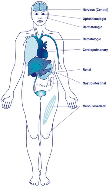 Anatomical illustration showing parts of the body which might be affected by lupus
