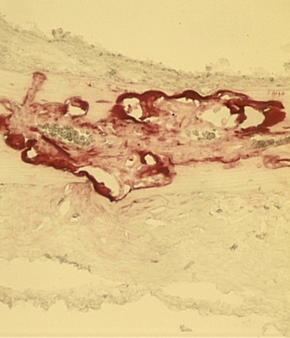 Enlarged image of bone showing osteoclasts (in red).