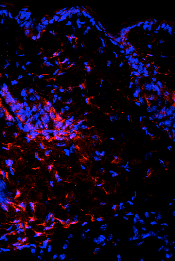 immune cells (red) in skin from the sclerodermic mice