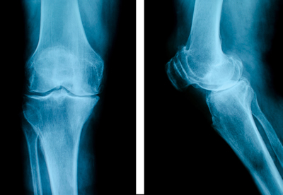 X-ray image of knee.