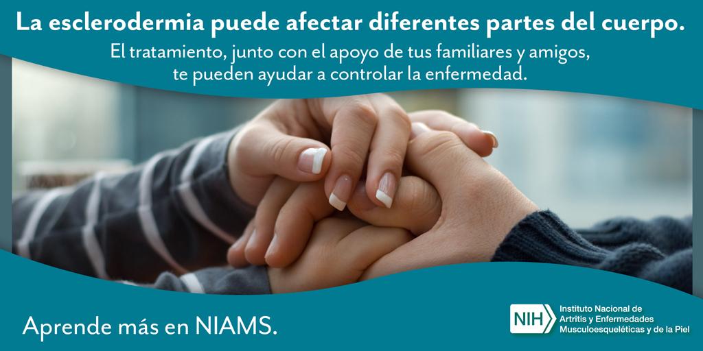 sosteniendo las manos juntas