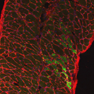 Diaphragm muscle from a SU9516-treated dystrophin deficient mouse showing nuclei (blue), myofibers (outlined in red) and regenerating muscle fibers (green).