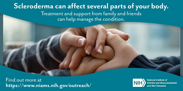 Scleroderma can affect several parts of your body. Treatment and support from family and friends can help manage the condition. Find out more at https://www.niams.nih.gov/outreach/