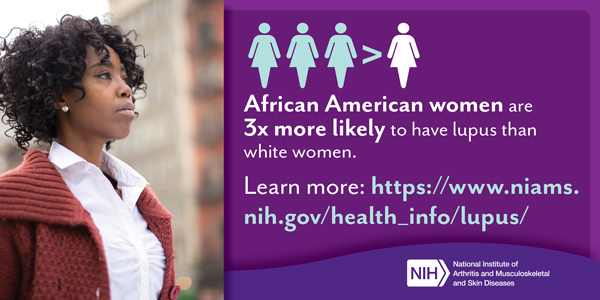 African American women are 3 times more likely to have lupus than white women - African American Women Lupus card
