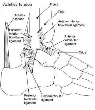 Achilles tendon injury