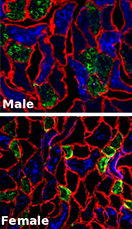 calf muscle fibers in male and female rats