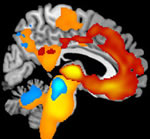 Brain tissue loss associated with Frontotemporal Lobar Degeneration