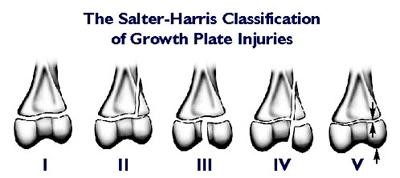 The Salter-Harris Classification of Growth Plate Injuries