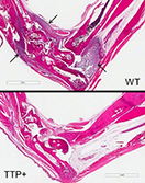 Stained sections of foot joints from mice
