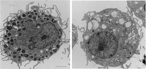 Mast cells harbor dozens of histamine-laden granules (left) but when stimulated by delta toxin (right) the granules are expelled into the cell's surroundings. Credit: Gabriel Núñez, M.D., University of Michigan Health System.
