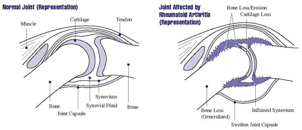 Representation of a normal and other joint affected by arthritis