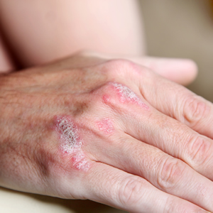 Photo of a hand showing psoriasis plaques.
