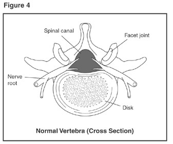 An anatomical illustration showing a cross section of a normal vertebra. Labeled structures are: spinal canal, facet joint, nerve root, and disk.
