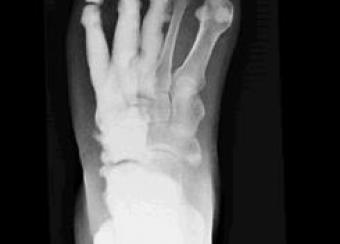 Radiograph of foot showing melorheostosis.
