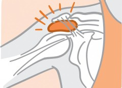 Illustration of a bursa in a shoulder joint