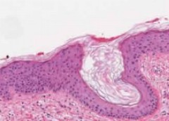 IRP researchers discovered the reason that skin tissue (pictured above) heals more slowly than tissue in the mouth.