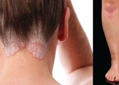 Psoriasis patches (or plaques) on the legs and the scalp characterized by silvery scales.